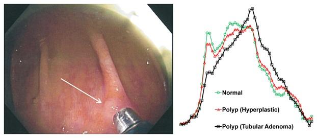 Raman Spectroscopy and Endomicroscopy Imaging 1